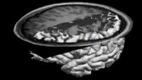 Brain scanner image by Hanna Damasio