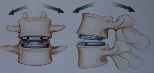 Prótesis discal